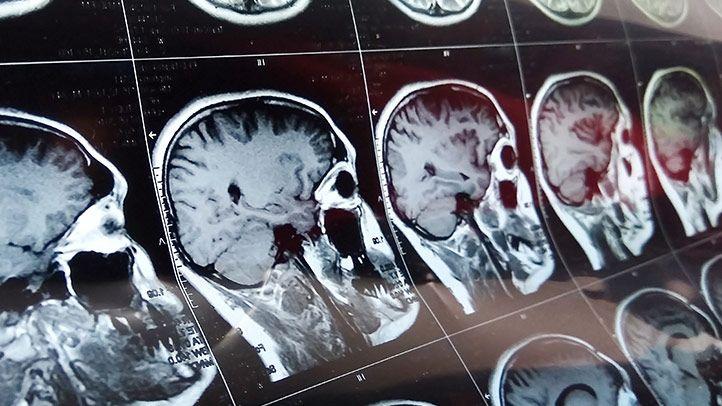 Lợi ích của socola đen đối với tim mạch và não bộ